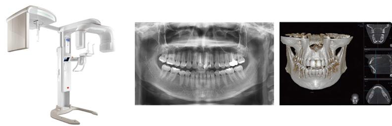 치아 3D 촬영장치